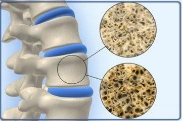 Πρόγραμμα μέτρησης οστικής πυκνότητας (οστεοπόρωση)